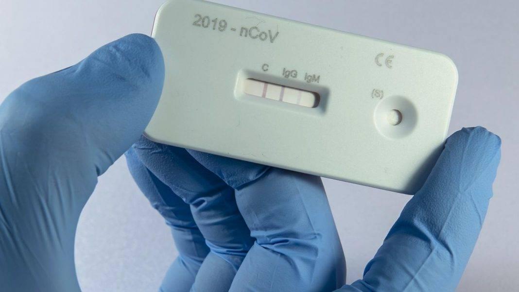 koronavirus 1